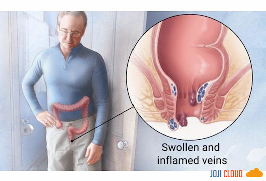 Hemorrhoid, Recognize Symptoms, Causes, and Prevention