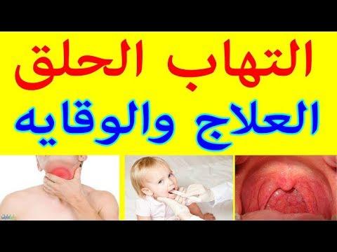 علاج احتقان الحلق للحامل