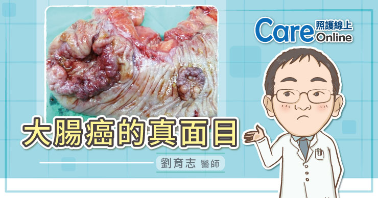 大腸癌的真面目