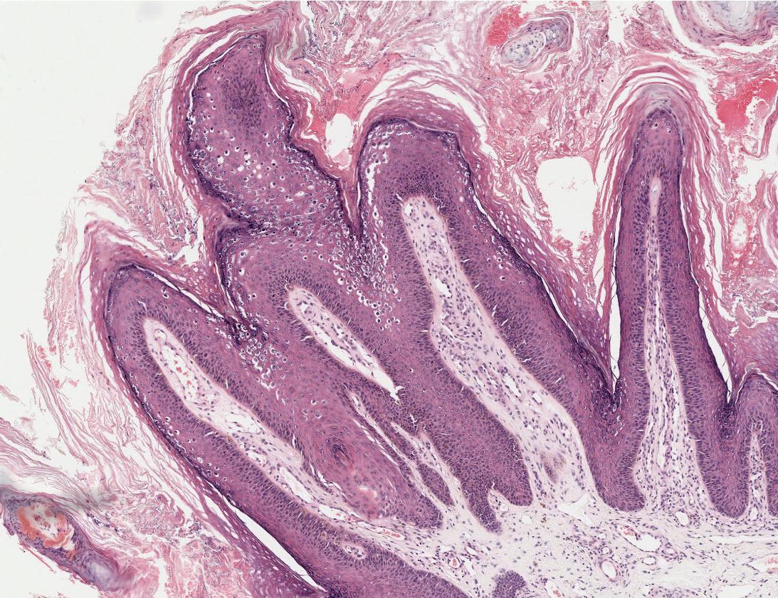 összefolyó és retikulált papillomatosis ddx)