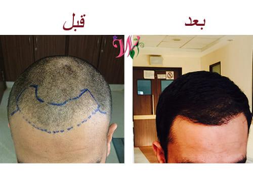 بديل  زراعة الشعر دليلك الشامل ل عام 2021