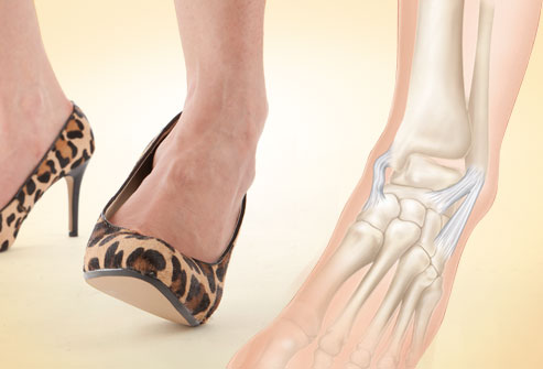 giày cao gây bong gân