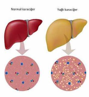 karaciğer hasarı