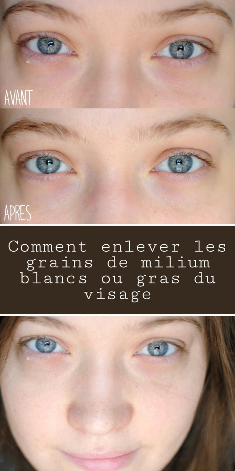 Comment enlever les grains de milium blancs ou gras du visage