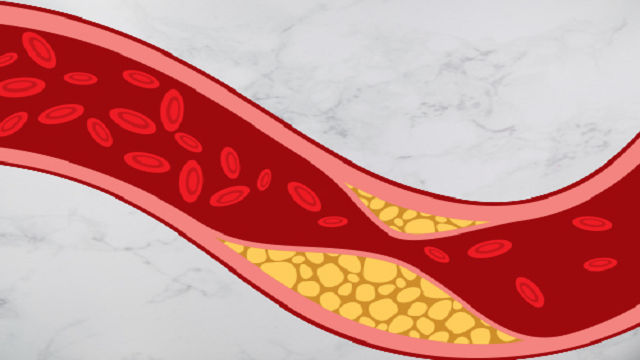 what is cholesterol in food