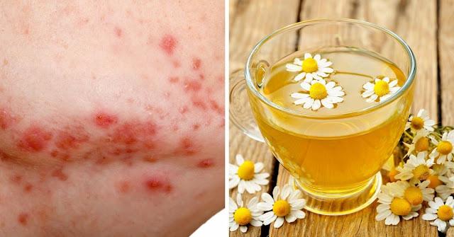 Comment utiliser la camomille pour éliminer l'acné en 15 minutes