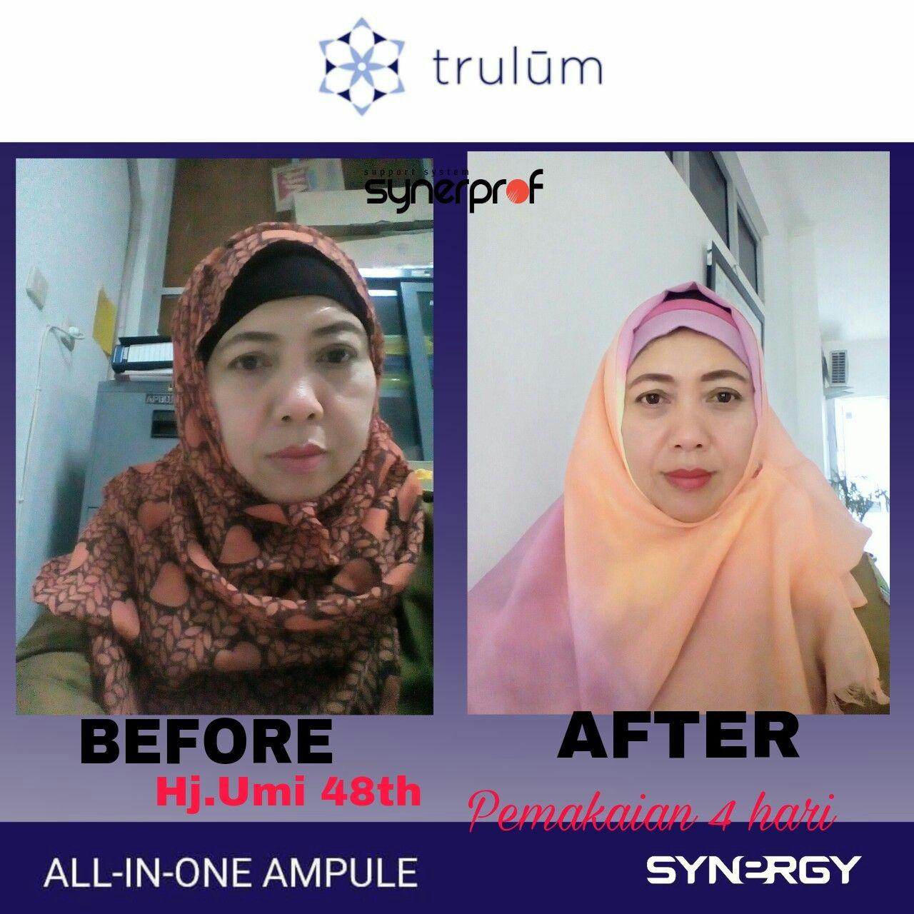 Jual Trulum All In One Ampoule Di Rantau Panjang WA: 08112338376