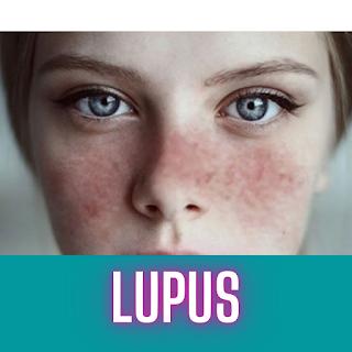 gambar lupus
