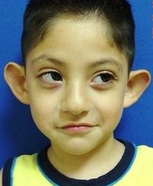 Cały świat Karli Odstające Uszy Nie Mały Problem