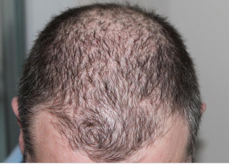 cara mengatasi kebotakan rambut kepala