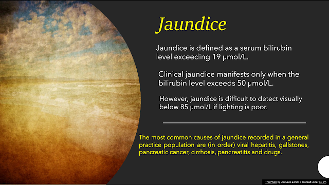 What are the differences between the features in patients with jaundice due to CBD stone and head of the pancreas carcinoma?