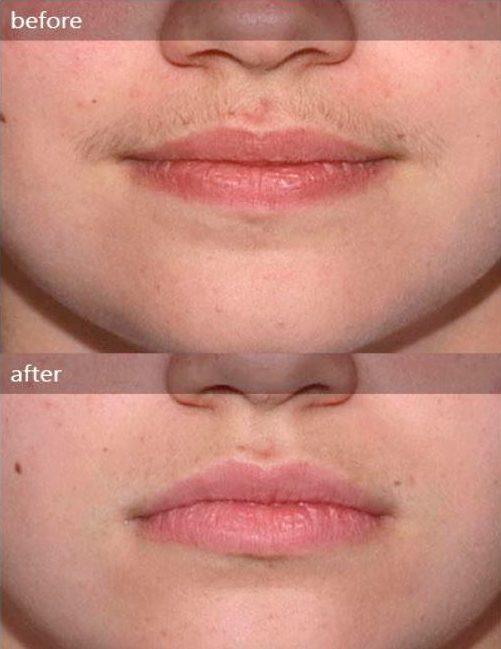 ohio mansfield facial Laser in