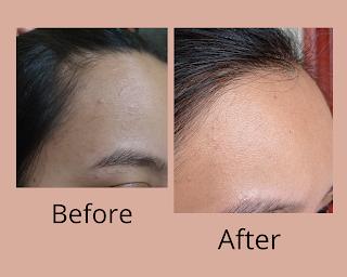 Before-after penggunaan Scarlett Acne Serum dan facial wash