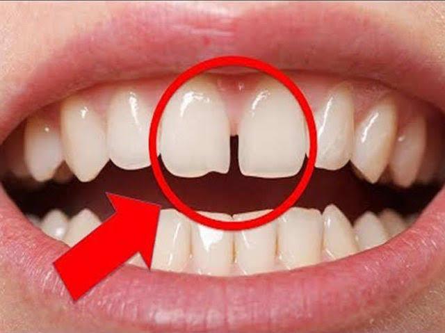 यदि दांतों के बीच गैप वाले लोग है आपके करीब तो जरूर जान ले यह बात