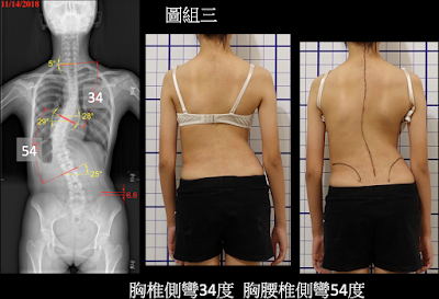 沒有背架輔助。極大角度之脊椎側彎能否被矯正? - 閻曉華脊骨神經醫學網