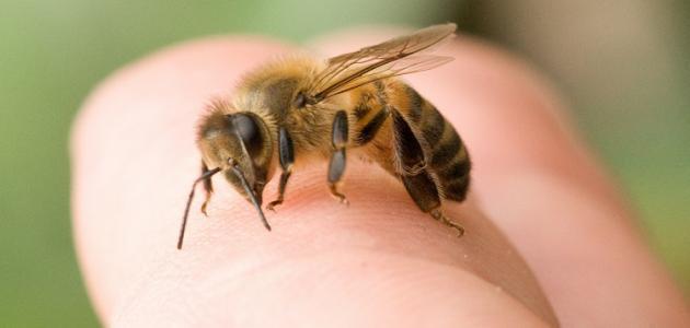 علاج قرص النحل بسرعة والأعراض المصاحبة لقرص النحل