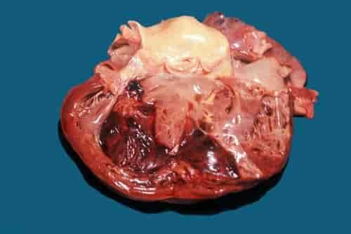 Miocardite e trombo mural Doenças cardíacas: miocardite e trombo mural (coágulo sanguíneo) no ventrículo esquerdo;