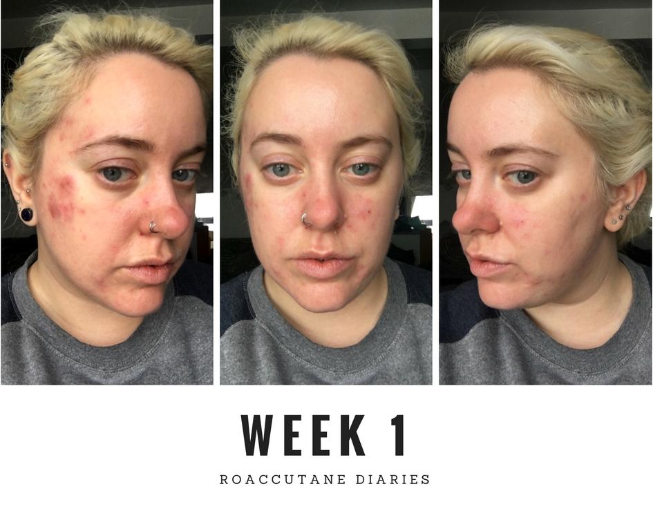 Roaccutane week 1