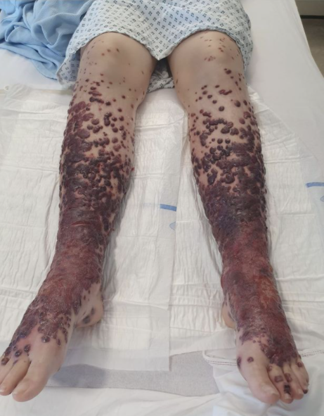 Covid-19 vaccine turned woman's legs into 'giant blisters' and left her in wheelchair(Photos)