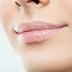 Sering Mencabut Kulit Bibir yang Pecah-Pecah, Ini Akibatnya!