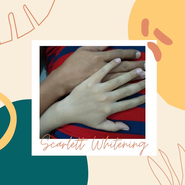 Scarlett whitening mencerahkan kulit