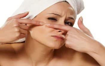 Acne Scars And The Ultimate Guide Of How To Fade Acne Scars