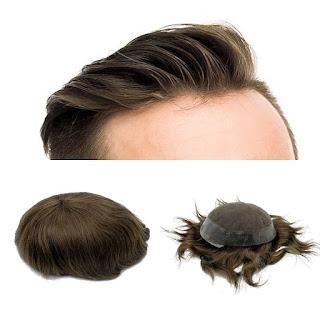 protez saç ne kadar dayanır