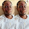 SAD NEWS, 19 YEARS OLD  BLACK BOY HAS BEEN ATTACKED BY A RACIST WHITE MEN IN UK,(PHOTOS).
