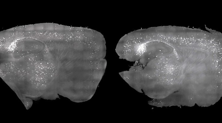 Neuroscientists At MIT Used Light And Sound To Clear Alzheimer's Plaque From Mice, And It Was A Success