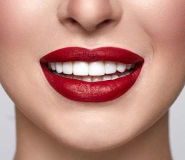 تبييض الأسنان وشعبيته المتزايدة