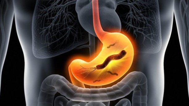 Normal Method To Eliminate Helicobacter Pylori Bacteria From The Stomach