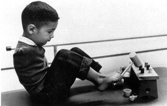 Талидомидовая трагедия. Ошибка фармацевтов сделала инвалидами тысячи детей