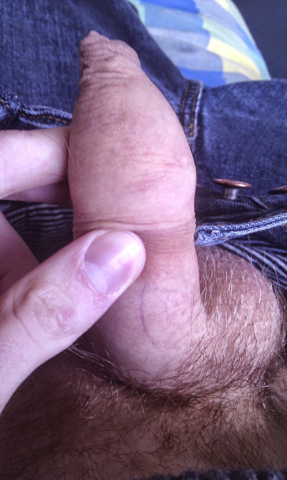 Foreskin so tight masturbation is impossible something