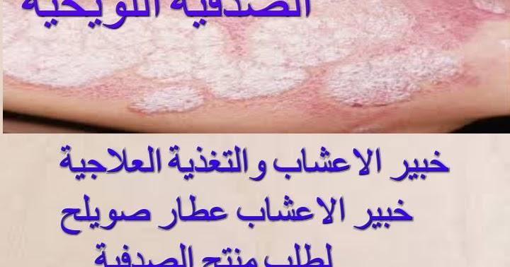 علاج الصدفية علاج الصدفية والاكزيما بالاعشاب
