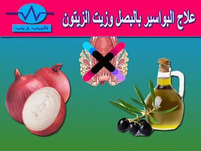 علاج البواسير بالبصل وزيت الزيتون