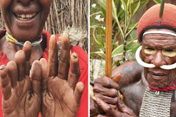 The Ancient Rituals Of The Dani Tribe Practices Finger Cutting As A Means Of Grieving
