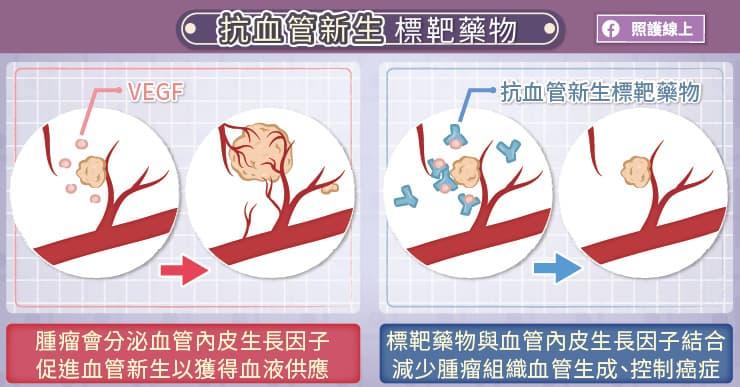 抗血管新生標靶藥物