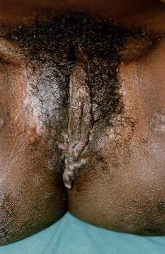 Hairy porn free video