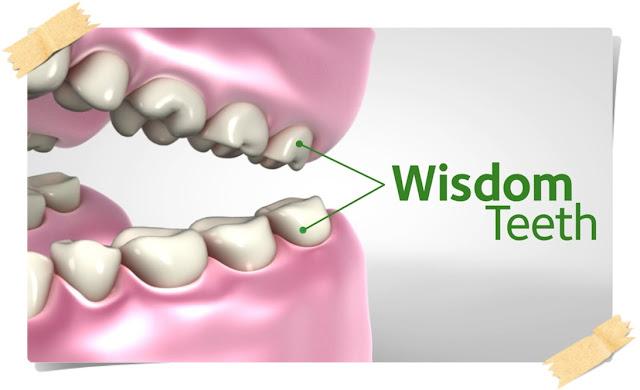 Masalah Gigi Bongsu (Wisdom Teeth) Dan Jangkitan Pericoronitis Serta Puncanya