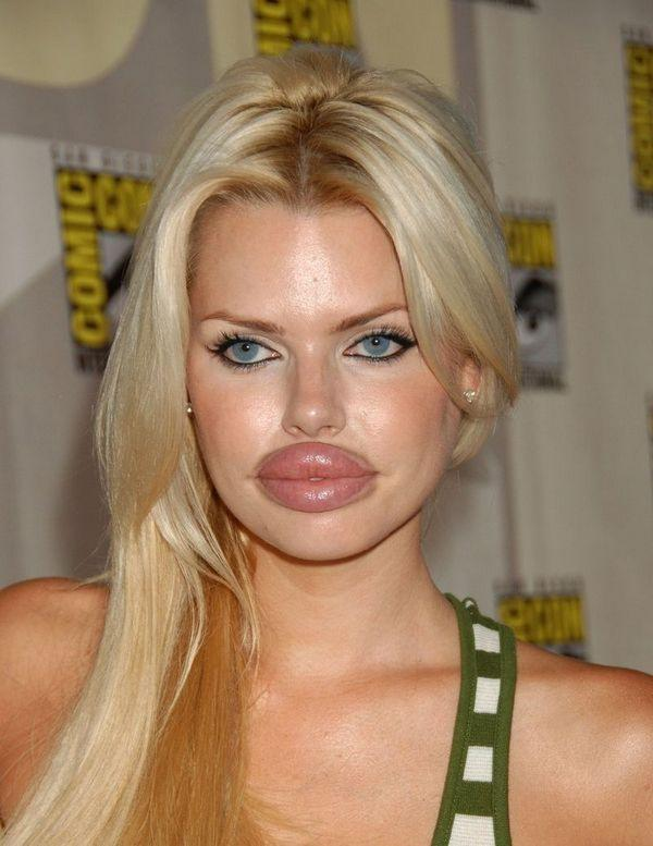 Facial Plastic Surgery Gone Wrong 21