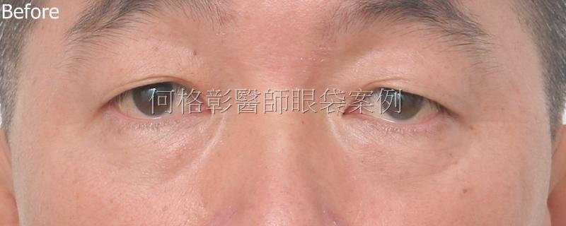 台中眼袋手術推薦