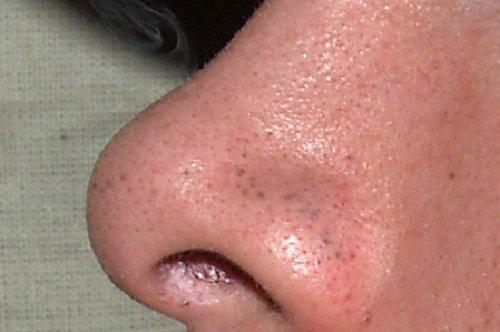 Bande adhésive pour enlever les points noirs du nez