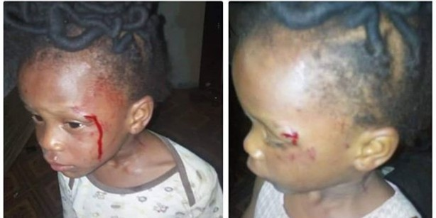Mother Brutalises Two-Year Old Girl For Not Being Able To Count '1- 200'