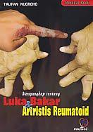 ajibayustore  Judul Buku : Mengungkap tentang Luka Bakar & Artristis Reumatoid Pengarang : Taufan Nugroho   Penerbit : Nuha Medika