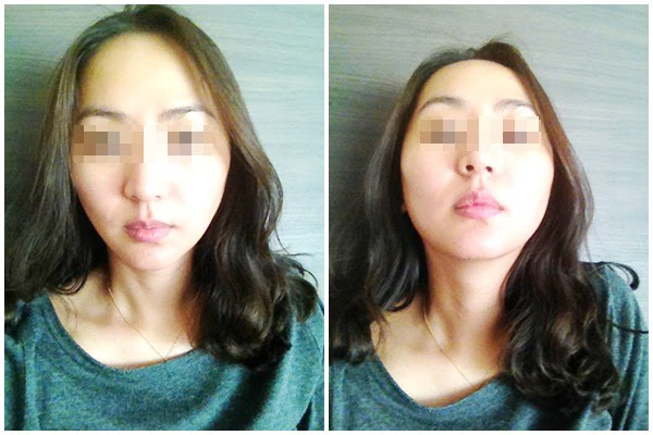 짱이뻐! - My Diary of LIfting Plastic Surgery in Korea Part 1