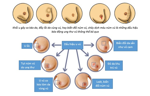 Dấu hiệu nhận biết và cách kiểm tra ung thư vú tại nhà