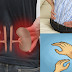 Early Dangerous Symptoms Of Kidney Failure You Probably Didn't Know