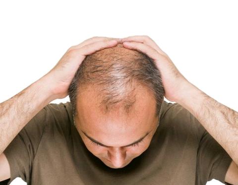 यदि चाहते हैं बालों का झड़ना रुक जाए और नए बाल उग जाएं तो इस उपाय को जरूर अपनाएं