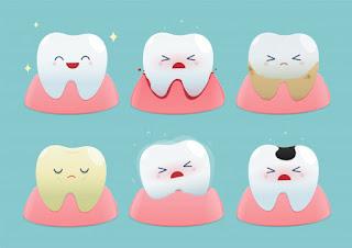 veneer gigi menyebabkan gusi bengkak