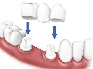 Bọc răng sứ quận 10 Nha khoa uy tín Quận 10 Nha khoa Dr Ngọc